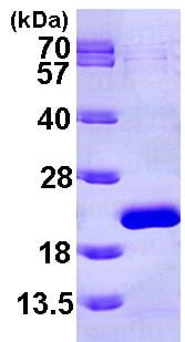 SDS-PAGE - EIF1AX protein (ab101058)