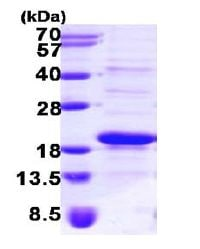 SDS-PAGE - SRP14 protein (ab101206)