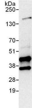 Immunoprecipitation - UNG antibody (ab101283)
