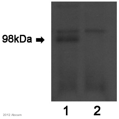 Immunoprecipitation - Anti-Zfp281 antibody (ab101318)