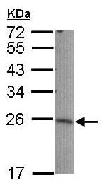 Western blot - LIN7B antibody (ab101339)