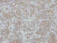 Immunohistochemistry (Formalin/PFA-fixed paraffin-embedded sections) - ITM2C antibody (ab101389)