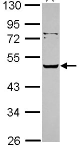 Western blot - SERPINA12 antibody (ab101391)