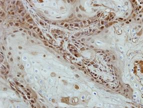 Immunohistochemistry (Formalin/PFA-fixed paraffin-embedded sections) - Sohlh2 antibody (ab101402)