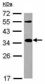 Western blot - CXCL16 antibody (ab101404)