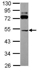 Western blot - SLC25A23 antibody (ab101444)