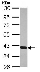 Western blot - RDH5 antibody (ab101457)