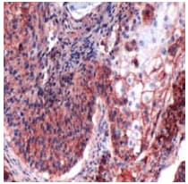 Immunohistochemistry (Formalin/PFA-fixed paraffin-embedded sections) - CD44 antibody [SP37] (ab101531)