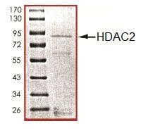 SDS-PAGE - HDAC2 protein (Active) (ab101662)
