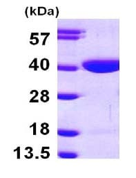 SDS-PAGE - RBKS protein (ab101665)
