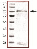 SDS-PAGE - ICK protein (ab101774)