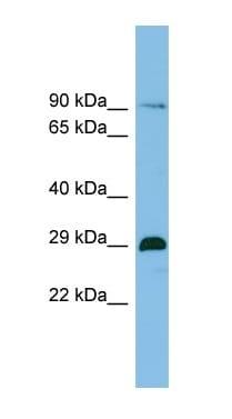 Western blot - C1orf77 antibody (ab101973)