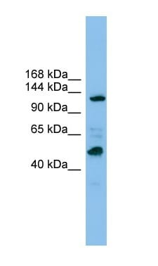 Western blot - Anti-POLR1B antibody (ab101977)
