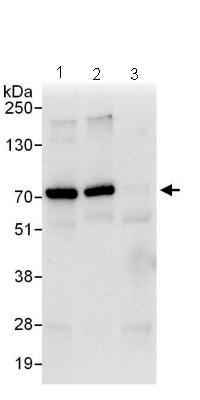 Immunoprecipitation - Gigaxonin antibody (ab101990)