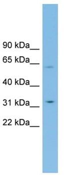 Western blot - SLC39A9 antibody (ab102030)