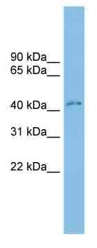 Western blot - CD299 antibody (ab102060)