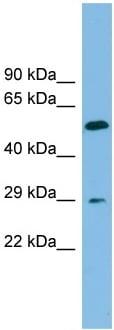 Western blot - TM4SF20 antibody (ab102065)