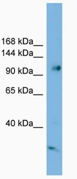 Western blot - Smek1 antibody (ab102096)