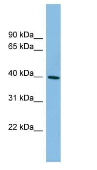 Western blot - Anti-MAGEB4 antibody (ab102099)