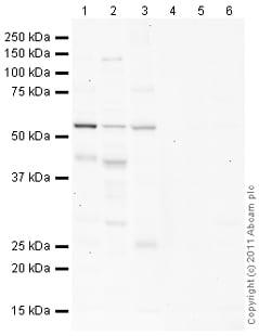 Western blot - Anti-Calumenin antibody (ab102115)