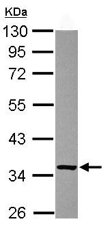 Western blot - Ketosamine-3-kinase antibody (ab102475)