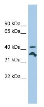 Western blot - RRAGC antibody (ab102547)