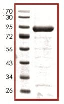 SDS-PAGE - p73 beta protein (ab102553)