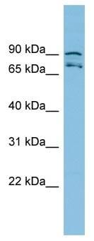 Western blot - MTRR antibody (ab102567)