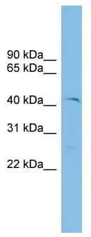 Western blot - ETV7 antibody (ab102570)