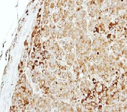Immunohistochemistry (Formalin/PFA-fixed paraffin-embedded sections) - MTMR14 antibody (ab102575)