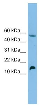 Western blot - EPO antibody (ab102613)