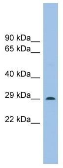 Western blot - Noto antibody (ab102617)