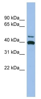 Western blot - FGL2 antibody (ab102630)