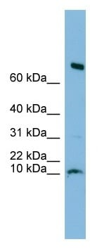 Western blot - C1orf122 antibody (ab102659)