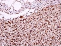 Immunohistochemistry (Formalin/PFA-fixed paraffin-embedded sections) - XPD antibody (ab102682)
