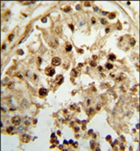Immunohistochemistry (Formalin/PFA-fixed paraffin-embedded sections) - HSD17B3 antibody (ab102771)