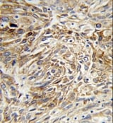 Immunohistochemistry (Formalin/PFA-fixed paraffin-embedded sections) - AGR3 antibody (ab102822)