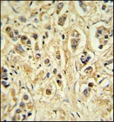Immunohistochemistry (Formalin/PFA-fixed paraffin-embedded sections) - ZNF202 antibody (ab103034)