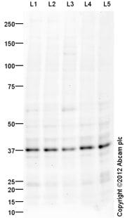 Western blot - Anti-XRCC3 antibody (ab103070)