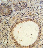 Immunohistochemistry (Formalin/PFA-fixed paraffin-embedded sections) - AMH  antibody (ab103233)