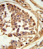 Immunohistochemistry (Formalin/PFA-fixed paraffin-embedded sections) - HSL/LIPE antibody (ab103281)