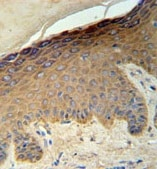 Immunohistochemistry (Formalin/PFA-fixed paraffin-embedded sections) - KRT35 antibody (ab103346)