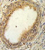Immunohistochemistry (Formalin/PFA-fixed paraffin-embedded sections) - HAPLN1 antibody (ab103455)