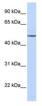 Western blot - beta 1 Adrenergic Receptor antibody (ab103653)