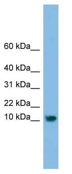 Western blot - C13orf30 antibody (ab103705)