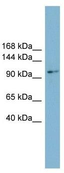 Western blot - CNNM2 antibody (ab103716)