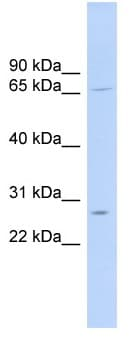 Western blot - MRPL13 antibody (ab103801)