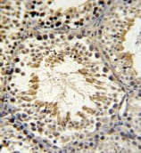 Immunohistochemistry (Formalin/PFA-fixed paraffin-embedded sections) - SPAG16 antibody (ab104061)