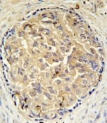 Immunohistochemistry (Formalin/PFA-fixed paraffin-embedded sections) - SRD5A3 antibody - C-terminal (ab104063)