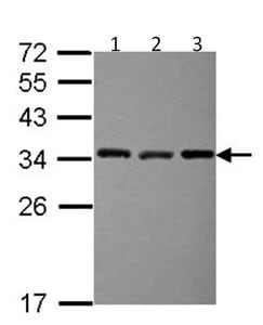 Western blot - EXOSC3 (acetyl) antibody (ab104161)